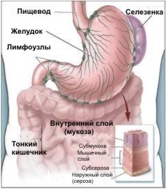 http://www.zdrav.kz/images/content/cancer/pic7.jpg