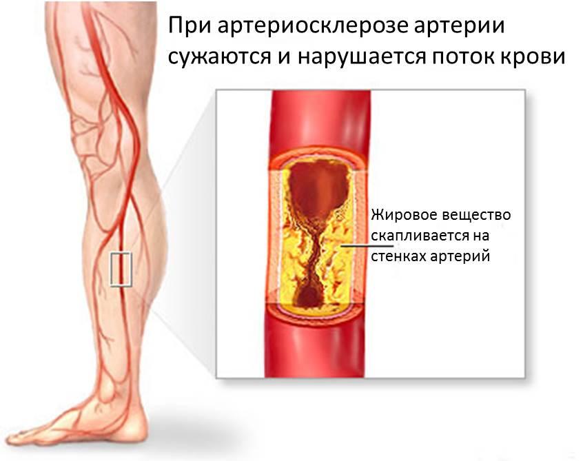 Тромбоангиит Облитерирующий
