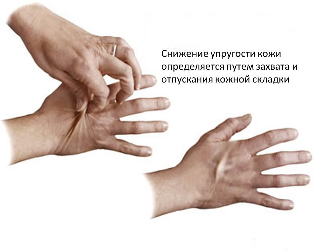 Обезвоживание организма. Причины, симптомы, профилактика и лечение обезвоживания