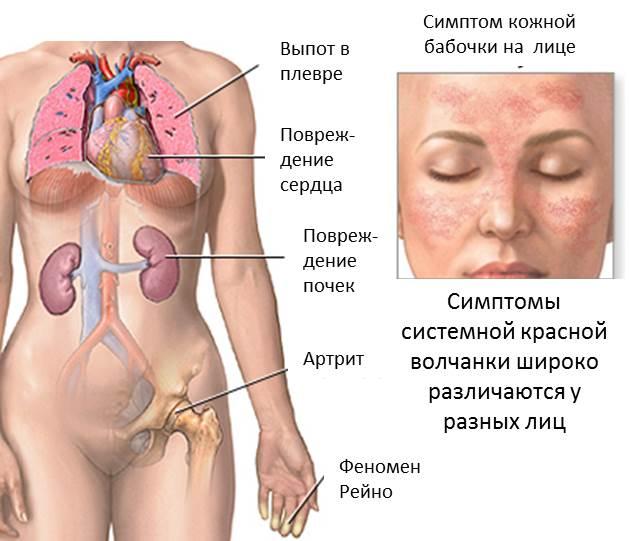 Скв суставы аппарата сердечно сосудистыми заболеваниями болезнями суставов женщины лечат бесплодие ис