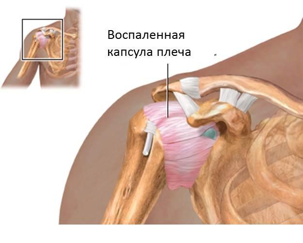 Капсулит плечевого сустава как лечить
