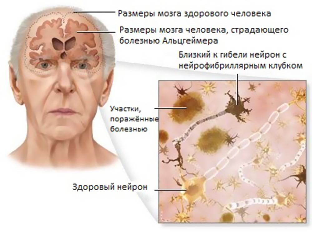 http://1popsihiatrii.ru/wp-content/uploads/2015/11/bolezni-altsgejmera-simptomy-dlya-obrashcheniya-k-vrachu.jpg