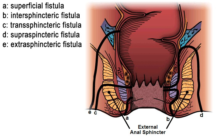 Kinds of fistulas diagram