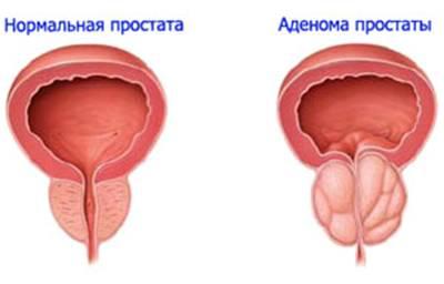 Рецепт от простатита на тыквенных семечках