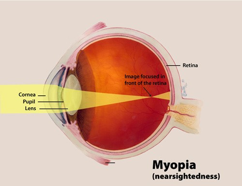 A color illustration of myopia highlighting the cornea, pupil and lens, and the way an image focuses in front of the retina.