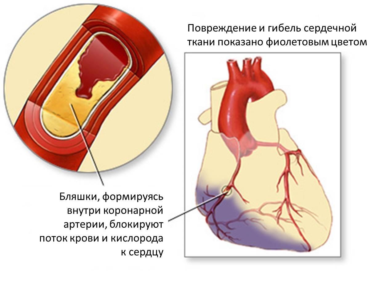 Атеросклероз. Причины и факторы риска. Виды атеросклероза и его симптомы