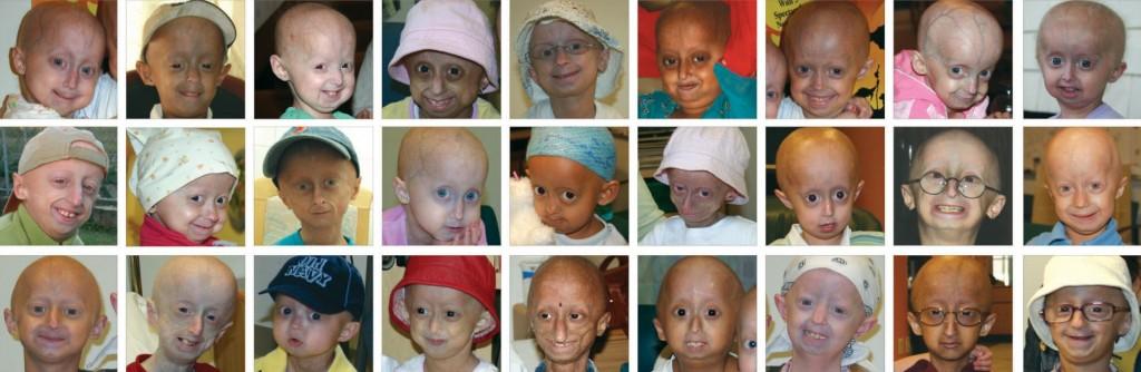 Синдром раннего старения – Прогерия: загадка близкая к разрешению