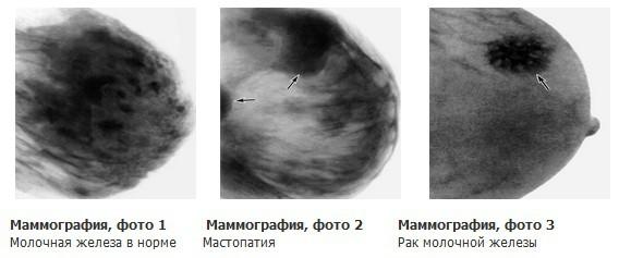 Маммография когда делать день - 161
