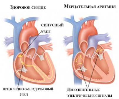 Способы лечения мерцательной аритмии   zdrav.kz