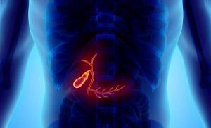 Хронический холецистит. Вопросы доктору Z