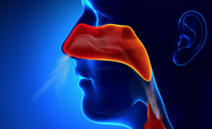 Является ли ваша простуда синуситом? Как это определить