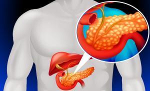 Жіті панкреатит – ұйқыбезінің қабынғандағы жіті ауруы.