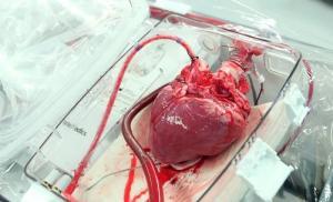За прошедшую неделю столичными кардиохирургами были проведены три операции по трансплантации сердца.