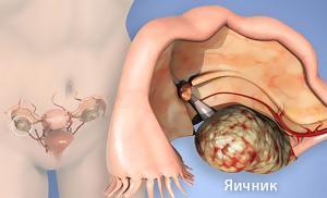 Рак яичников :Новый взгляд на старую проблему