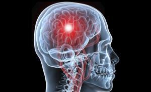 Инсульт приводит к 60-процентной потере активного периода жизни